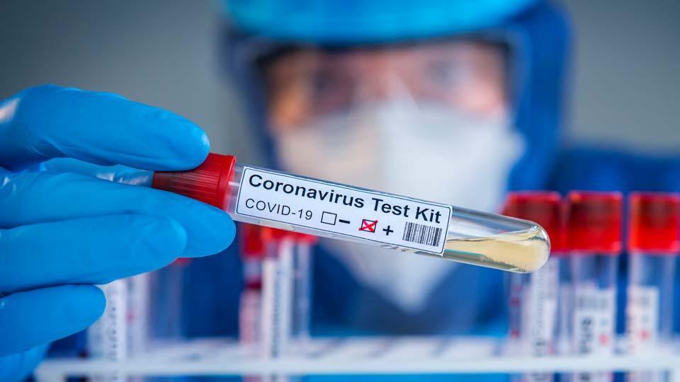 Assam spent over Rs 1000 Cr on Coronavirus